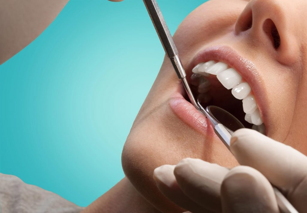what is a root canal Simpsonville SC?