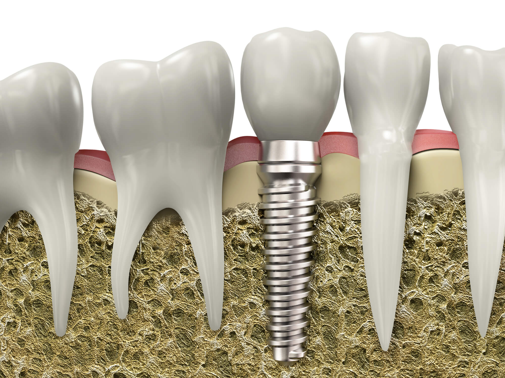 who offers dental implants simpsonville sc?