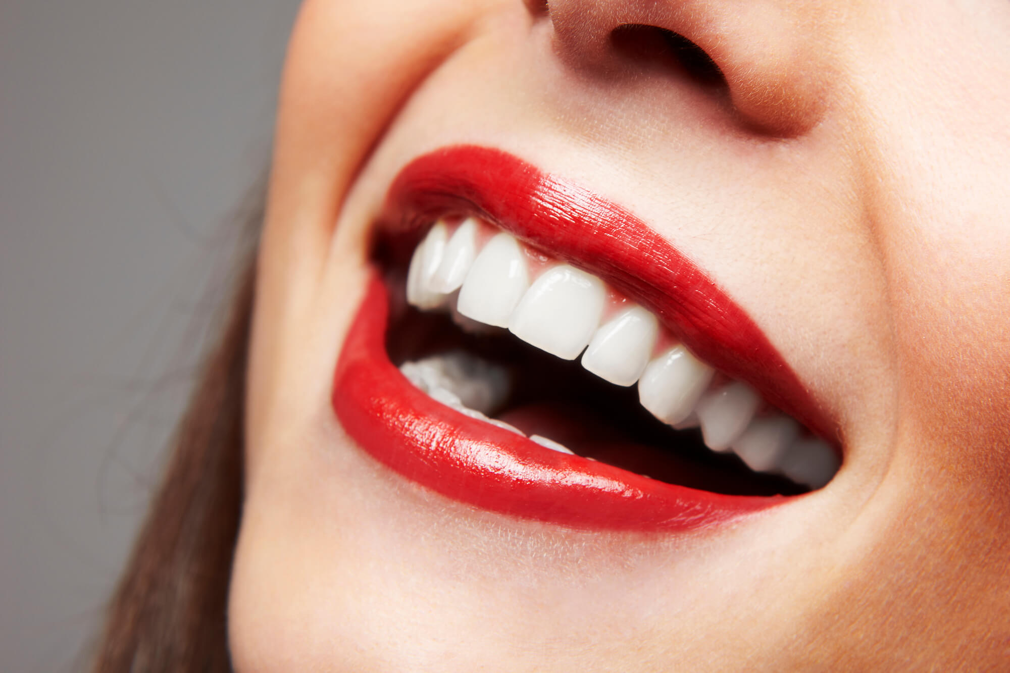 where can I get the best veneers greenville sc?