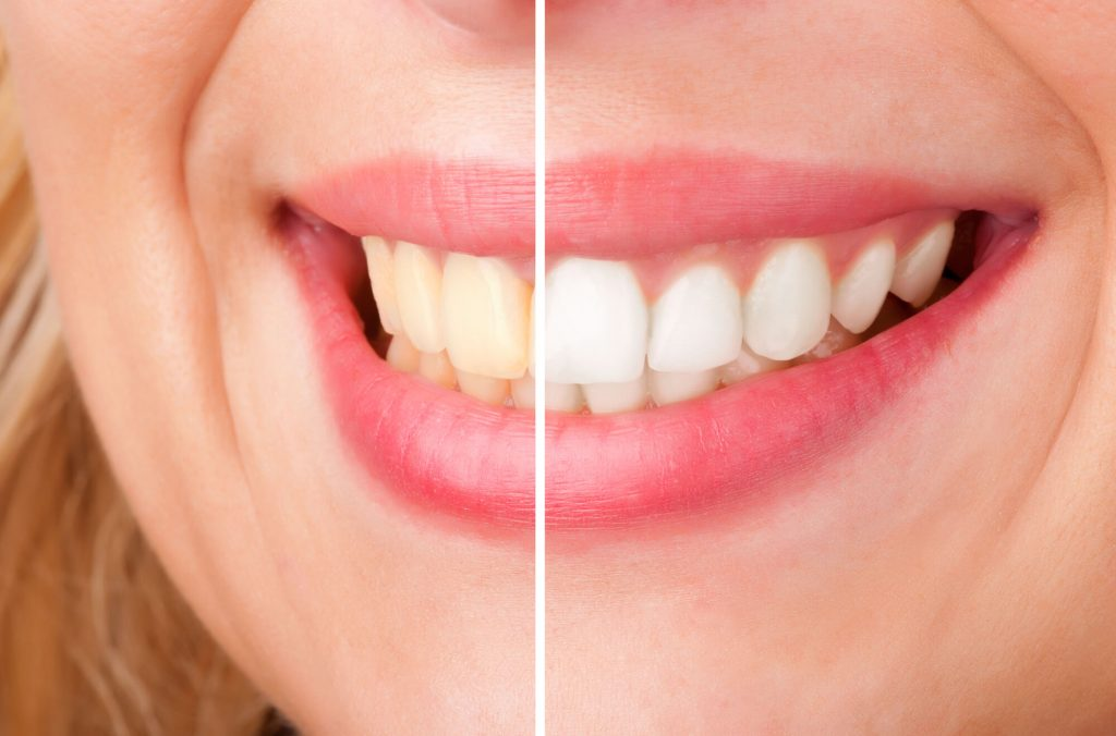 where is the best teeth whitening greenville sc?