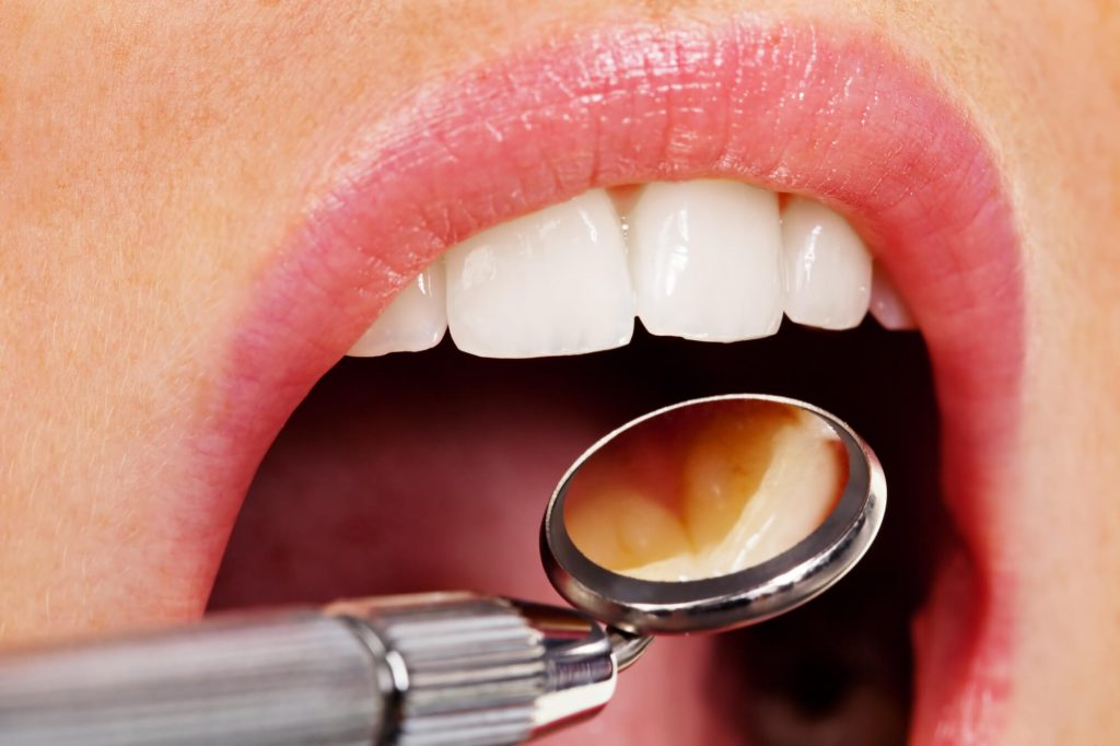 where are the best tooth extraction simpsonville sc?