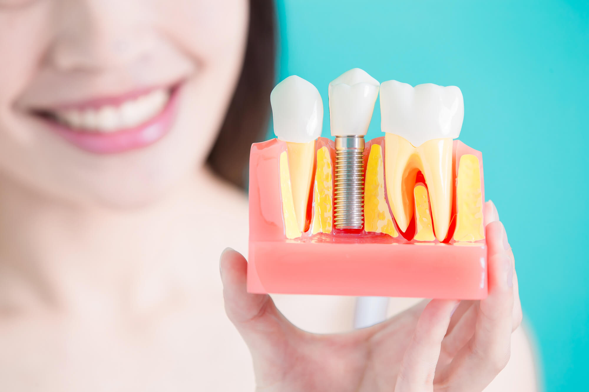 What are dental crowns Simpsonville SC?