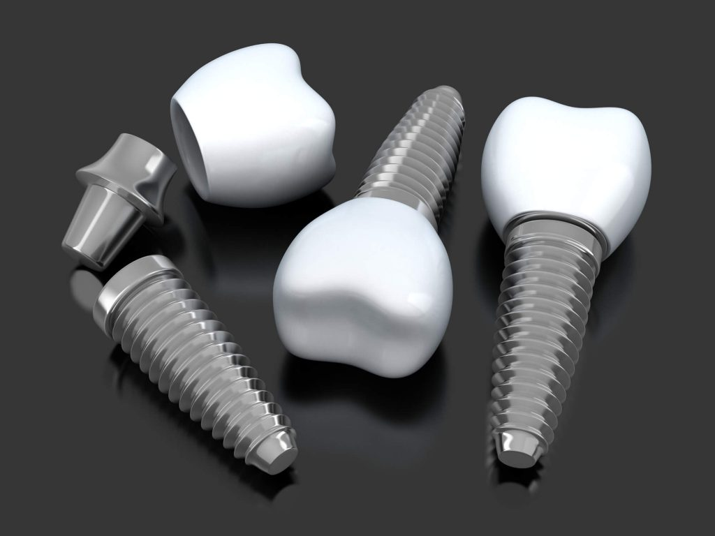 Where can I get dental implants Simpsonville SC?