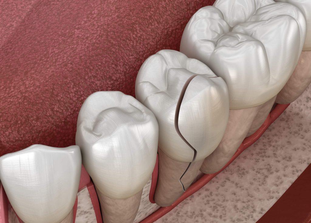 Who is the best emergency dentistSimpsonville SC?